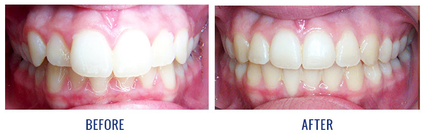 Smile Gallery Before And After Patient Photos Dingus