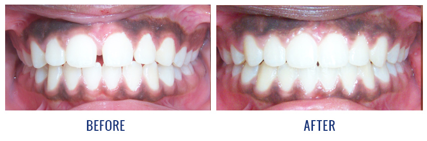 Smile Gallery - Before and After Patient Photos | Dingus ...