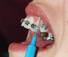 brushing teeth with braces instructions